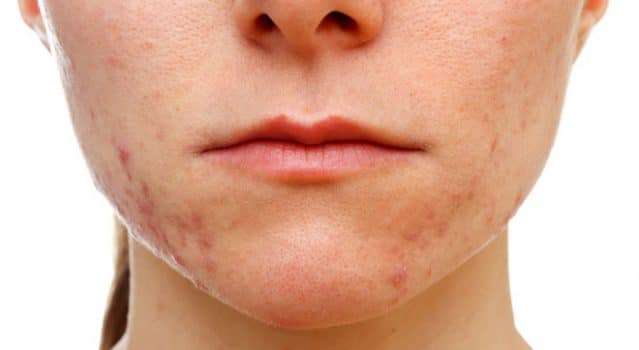 Teenage acne – What can we do about it?
