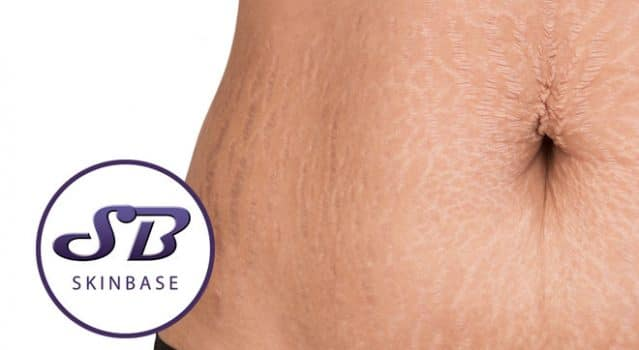 Treating Stretch Marks and Getting Your Confidence Back