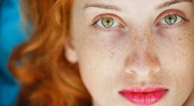 What's the Difference Between Freckles and Sun Damage?