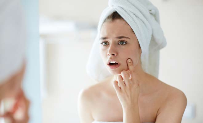 What Does Skin Purging Mean? - SkinBase™ Facial