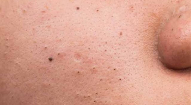 The lowdown on blackheads and how to treat them