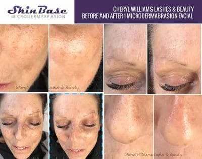 Take years off your skin in just 30 minutes - SkinBase™ Facial
