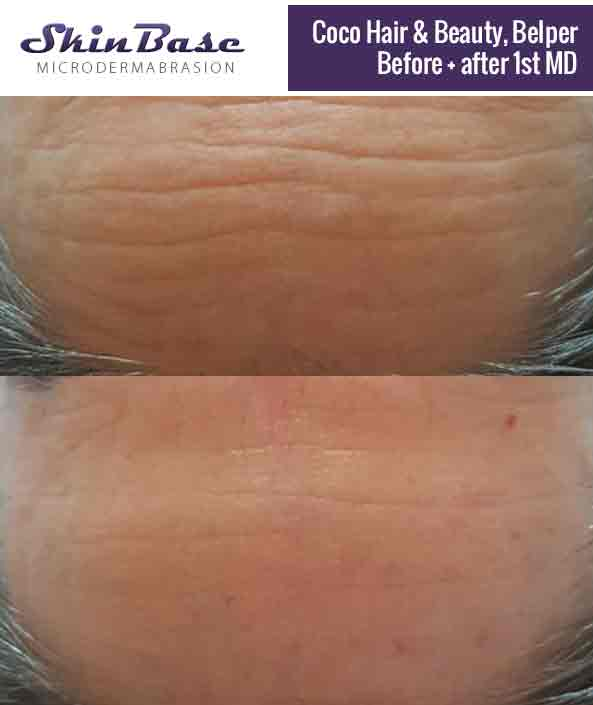 Microdermabrasion Before and After - SkinBase™ Facial