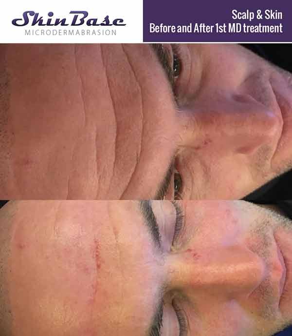 Deep forehead wrinkles