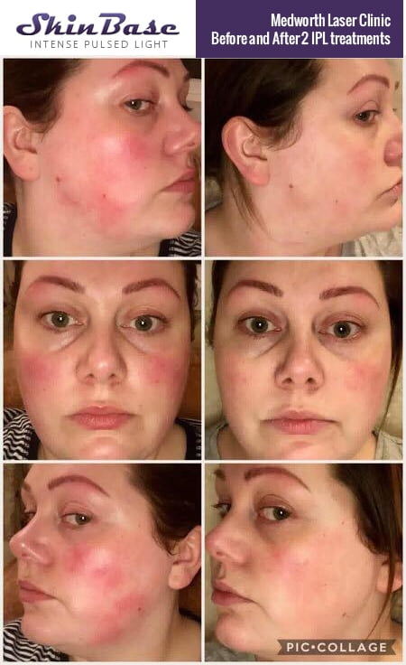 Intense Pulsed Light Before and After - SkinBase™ Facial