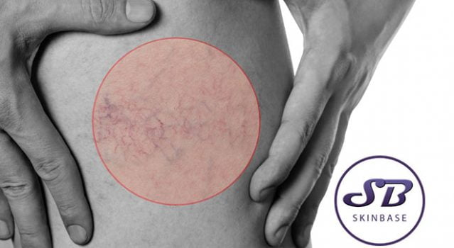 Spider veins – Can we treat them?