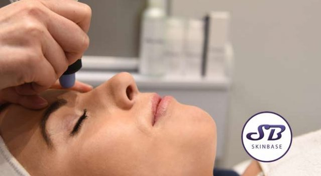 Are microdermabrasion results permanent?