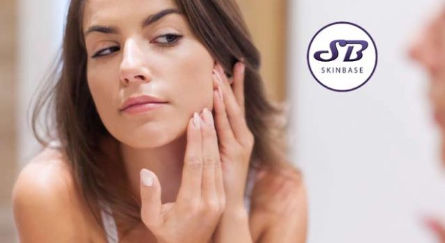 Why can microdermabrasion cause breakouts?