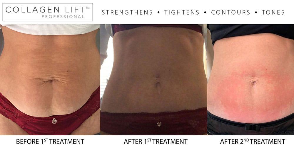 Collagen Lift Transformation
