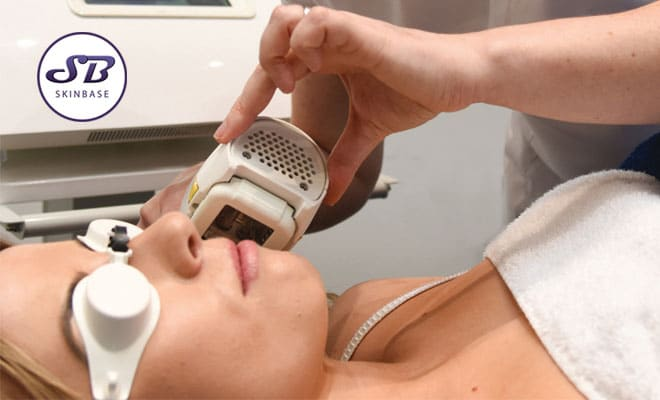 IPL for treating your skin concerns