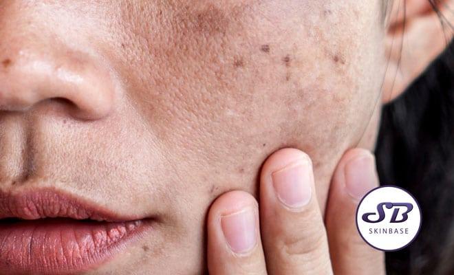 uneven pigmentation