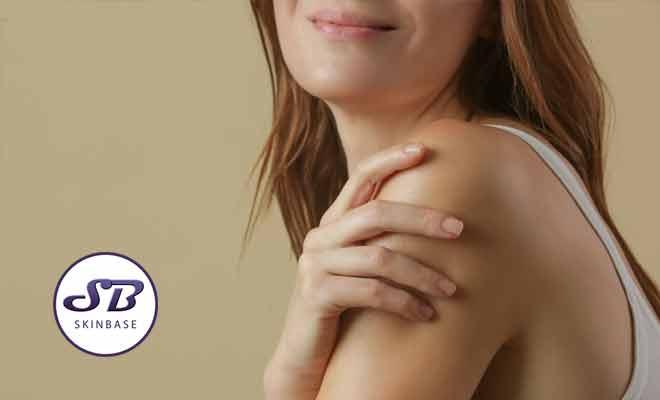 blotchy skin