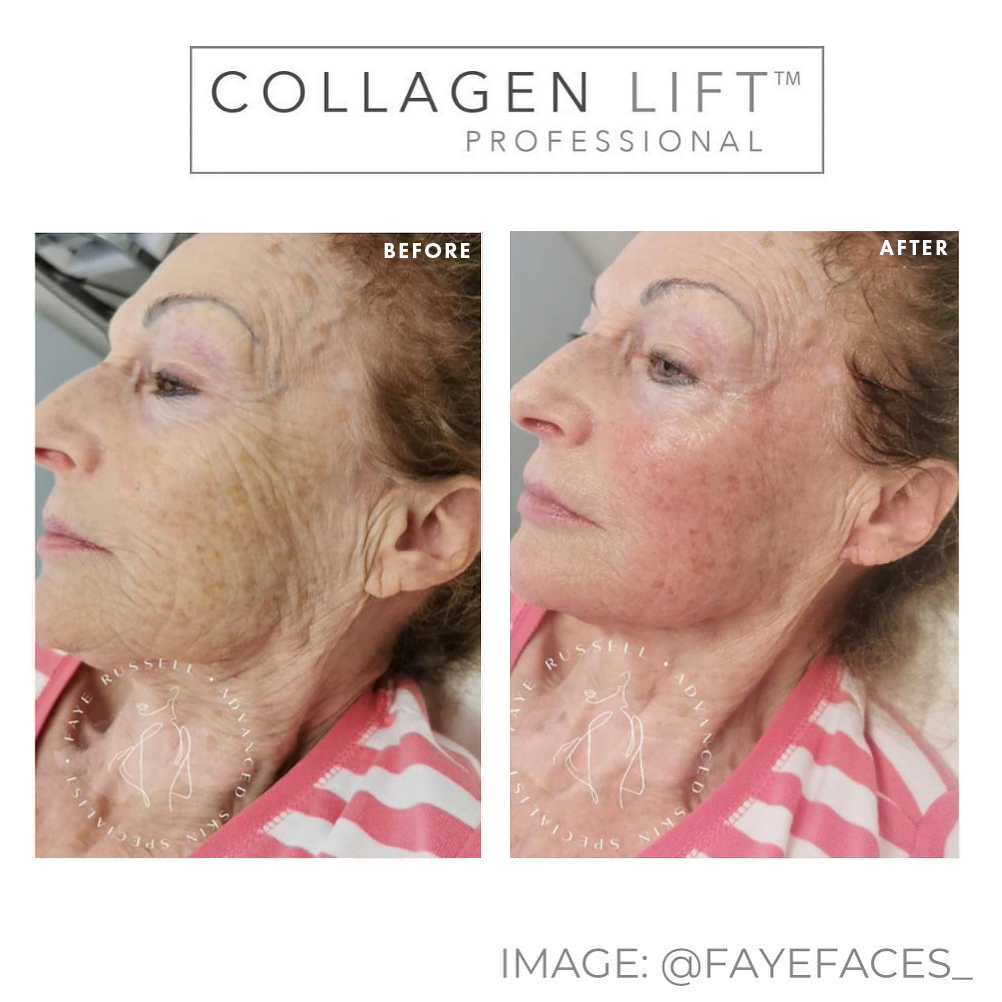 collagen lift before and after